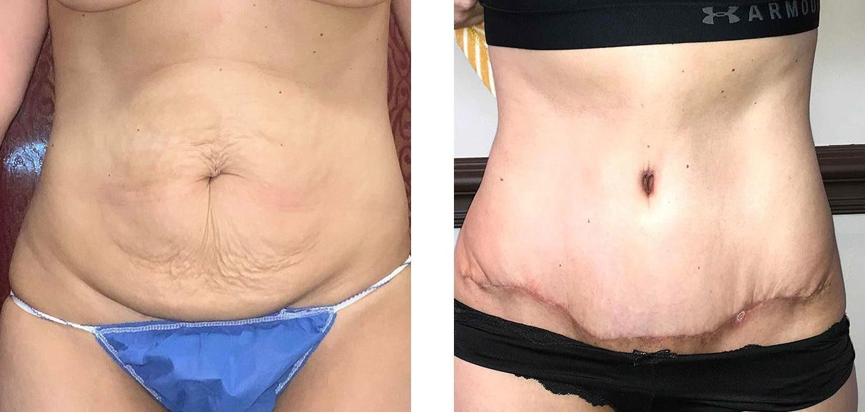 Cosmetic Surgery Tulsa | Tummy Tuck - Patient 1 - Front