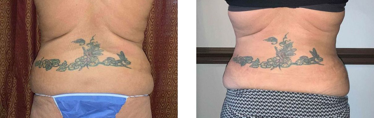 Cosmetic Surgery Tulsa | Tummy Tuck - Patient 2 - Back