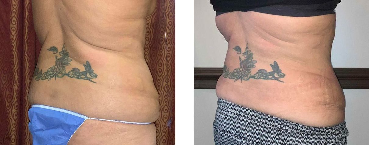Cosmetic Surgery Tulsa | Tummy Tuck - Patient 2 - Back Oblique 1