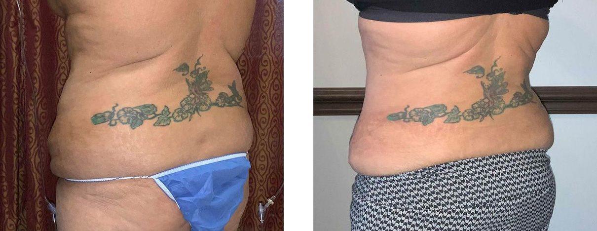 Cosmetic Surgery Tulsa | Tummy Tuck - Patient 2 - Back Oblique 2
