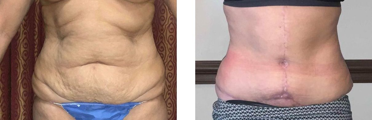 Cosmetic Surgery Tulsa | Tummy Tuck - Patient 2 - Front