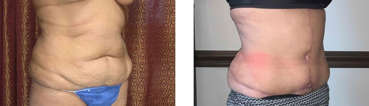 Cosmetic Surgery Tulsa | Tummy Tuck - Patient 2 - Oblique 1