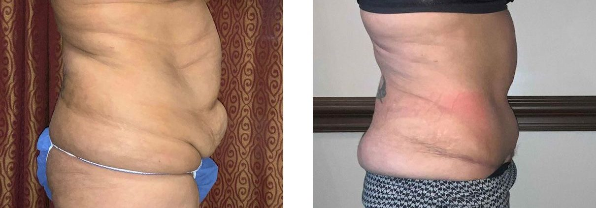 Cosmetic Surgery Tulsa | Tummy Tuck - Patient 2 - Side 1