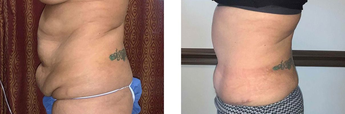 Cosmetic Surgery Tulsa | Tummy Tuck - Patient 2 - Side 2