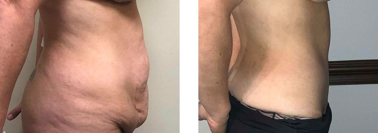 Cosmetic Surgery Tulsa | Tummy Tuck - Patient 4 - Side 1