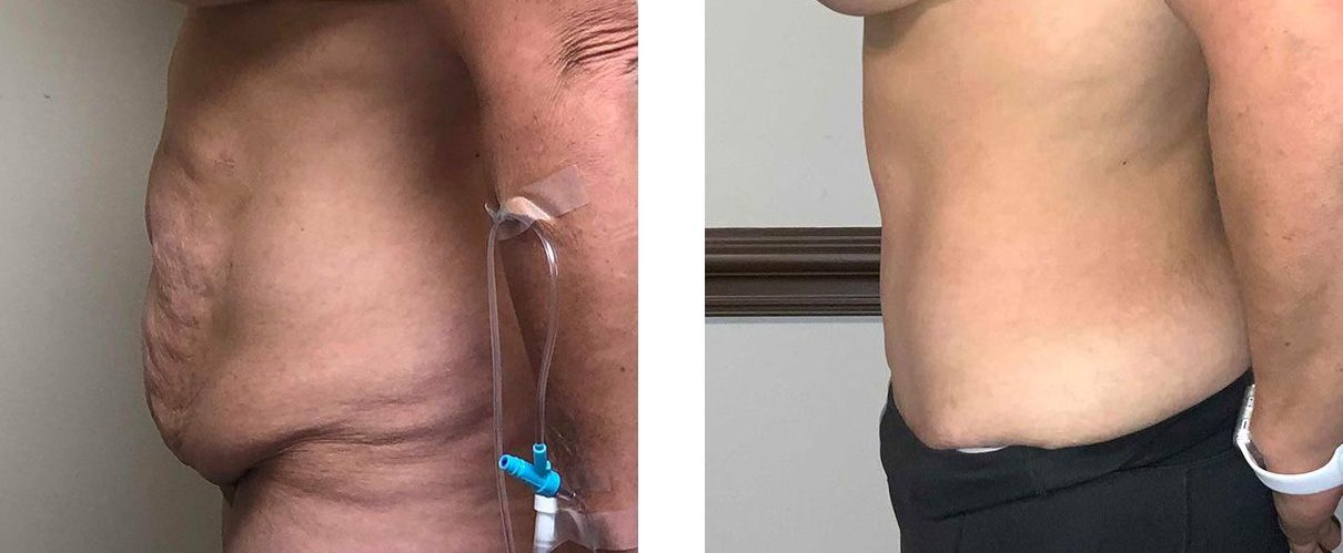 Cosmetic Surgery Tulsa | Tummy Tuck - Patient 4 - Side 2