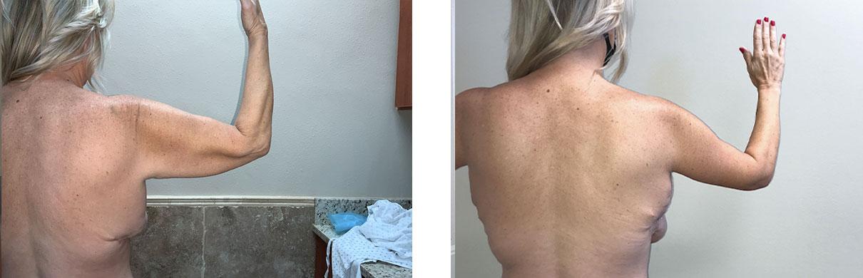 Cosmetic Surgery Tulsa   Brachioplasty - Patient 2 - Right Back
