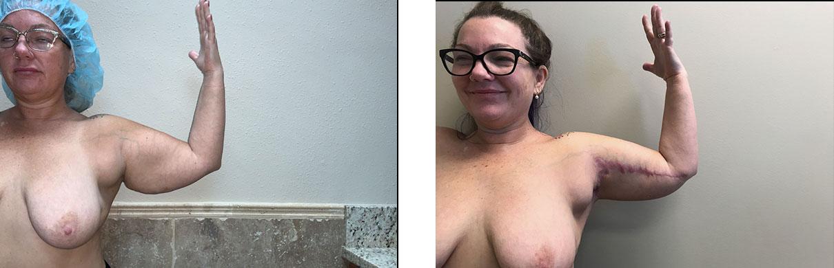 Cosmetic Surgery Tulsa   Brachioplasty - Patient 2 - Left Front