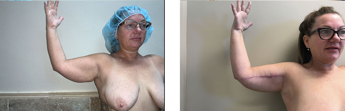 Cosmetic Surgery Tulsa   Brachioplasty - Patient 2 - Right Front