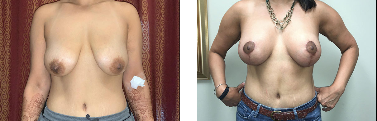 Cosmetic Surgery Tulsa   Breast Augmentation - Patient 4 - Front