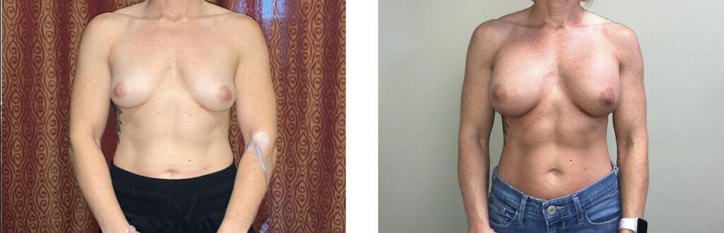 Breast Augmentation Patient 12 Front
