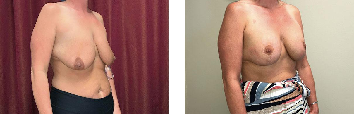 Cosmetic Surgery Tulsa | Tummy Tuck - Patient 4 - Oblique 1