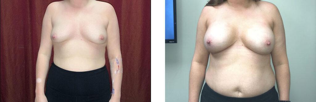 Breast Augmentation Patient 9 Front