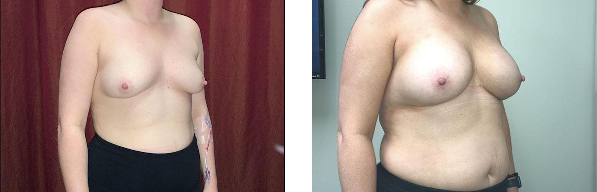 Cosmetic Surgery Tulsa   Breast Augmentation - Patient 4 - Oblique 1