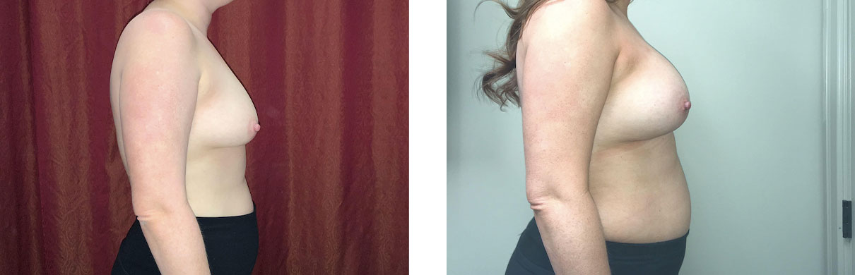 Cosmetic Surgery Tulsa   Breast Augmentation - Patient 4 - Side 1