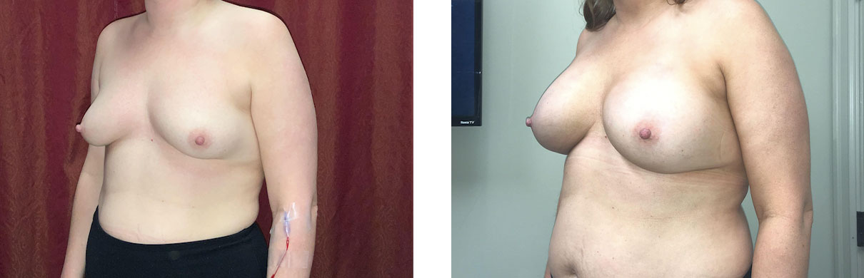Cosmetic Surgery Tulsa   Breast Augmentation - Patient 4 - Oblique 2