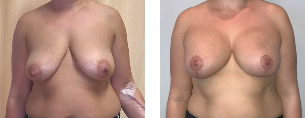 Cosmetic Surgery Tulsa | Breast Lift - Patient 1 - Front
