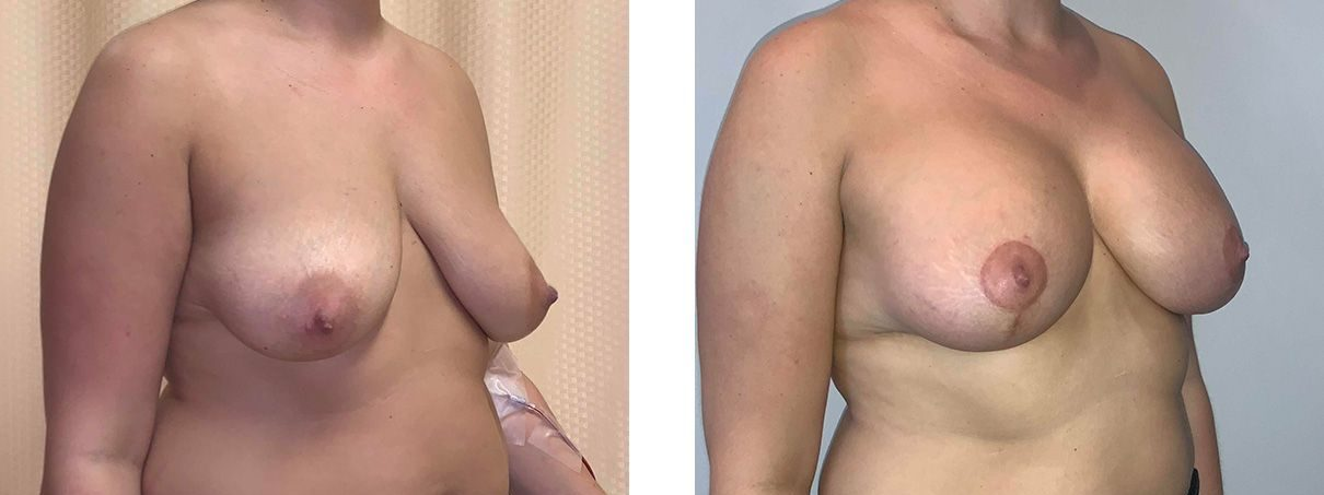 Cosmetic Surgery Tulsa | Breast Lift - Patient 1 - Oblique 1
