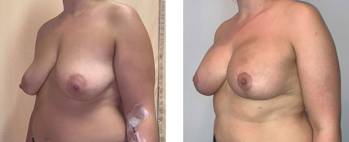Cosmetic Surgery Tulsa | Breast Lift - Patient 1 - Oblique 2