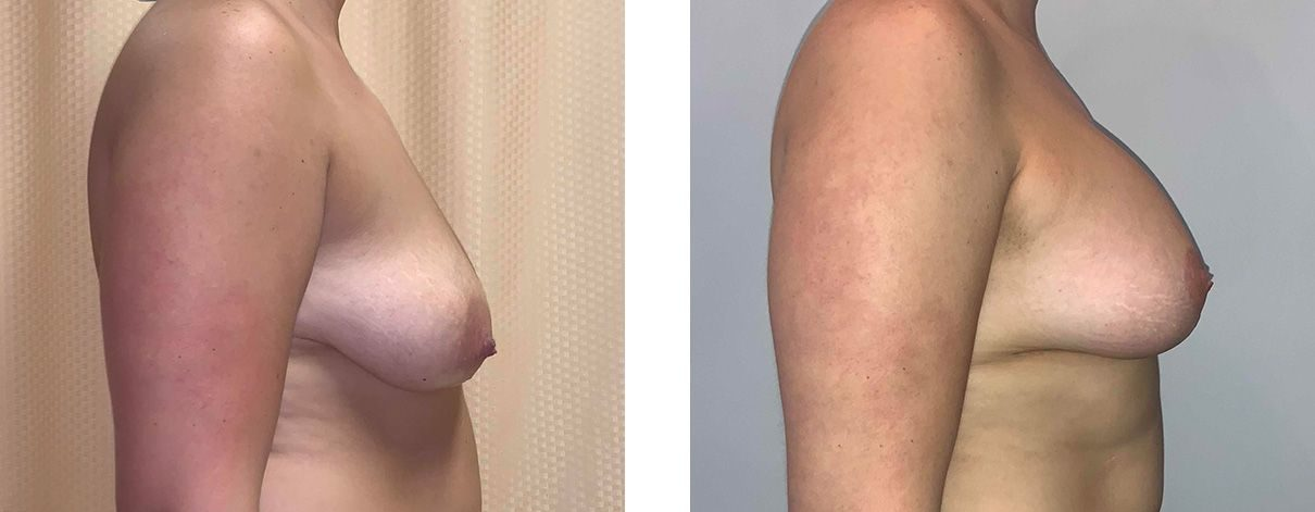Cosmetic Surgery Tulsa | Breast Lift - Patient 1 - Side 1
