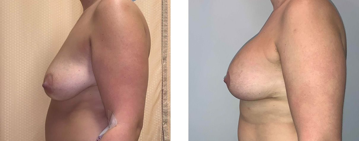 Cosmetic Surgery Tulsa | Breast Lift - Patient 1 - Side 2