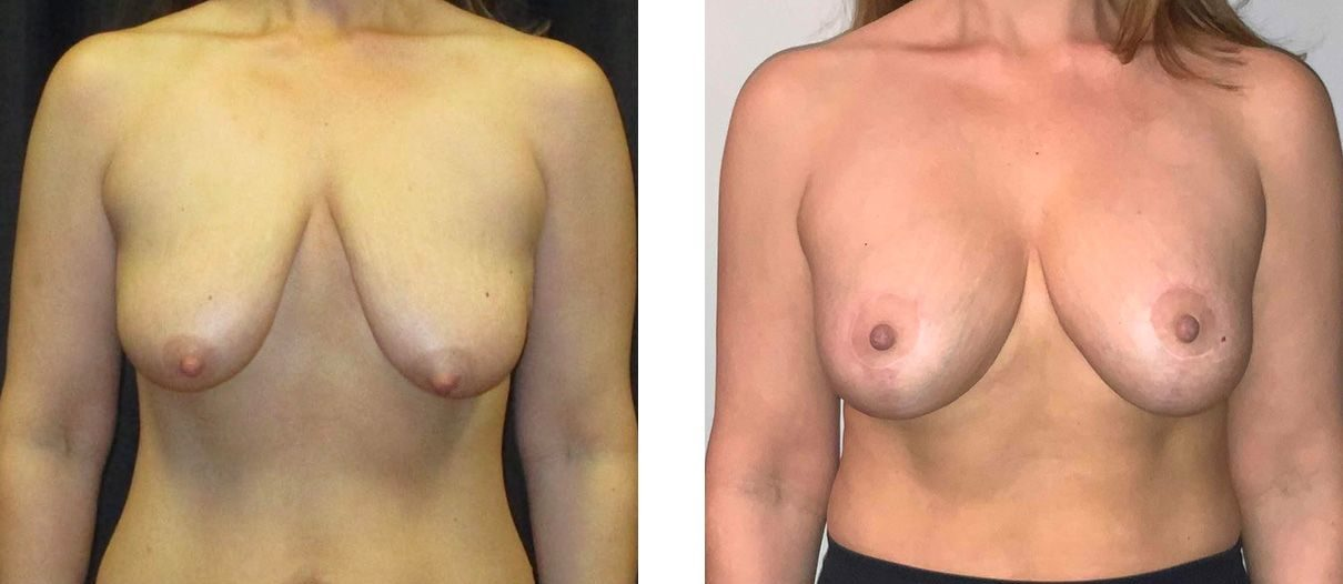 Cosmetic Surgery Tulsa | Breast Lift - Patient 2 - Front