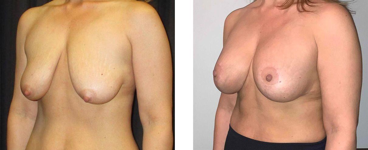 Cosmetic Surgery Tulsa | Breast Lift - Patient 2 - Oblique 2