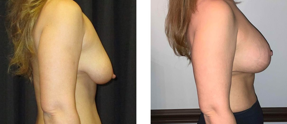 Cosmetic Surgery Tulsa | Breast Lift - Patient 2 - Side 1