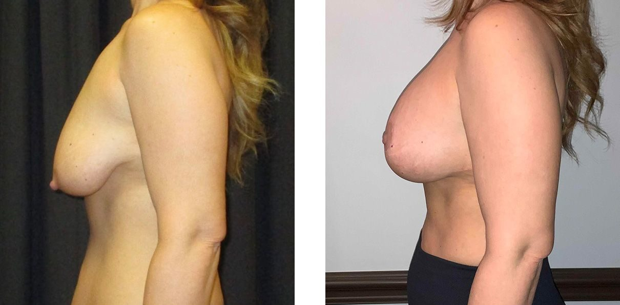 Cosmetic Surgery Tulsa | Breast Lift - Patient 2 - Side 2