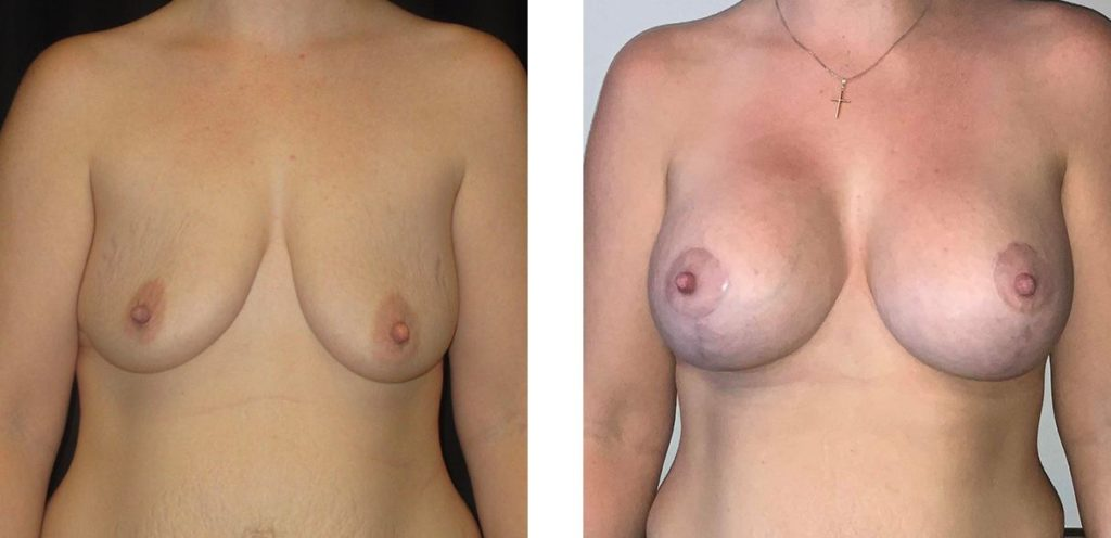 Cosmetic Surgery Tulsa | Breast Lift - Patient 3 - Front