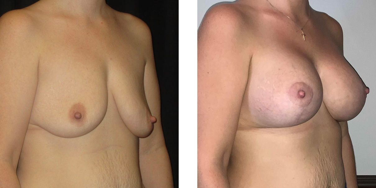Cosmetic Surgery Tulsa | Breast Lift - Patient 3 - Oblique 1