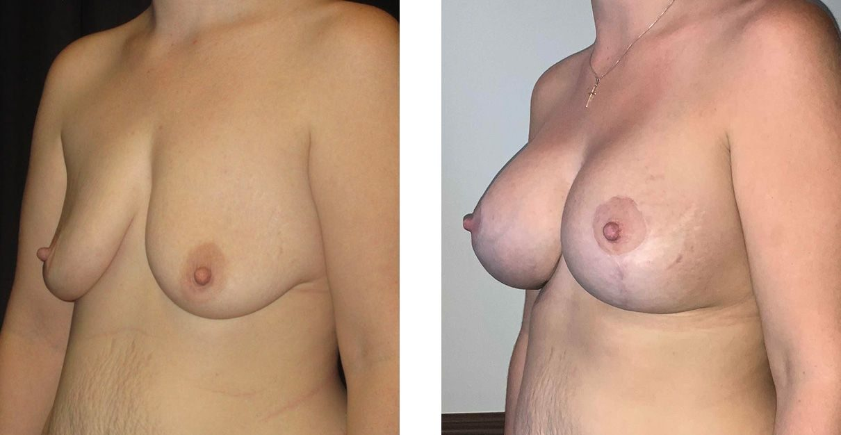 Cosmetic Surgery Tulsa | Breast Lift - Patient 3 - Oblique 2