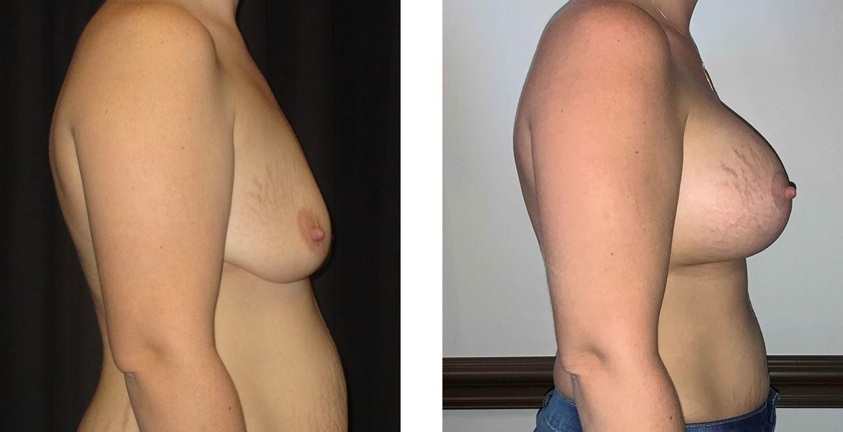 Cosmetic Surgery Tulsa | Breast Lift - Patient 3 - Side 1