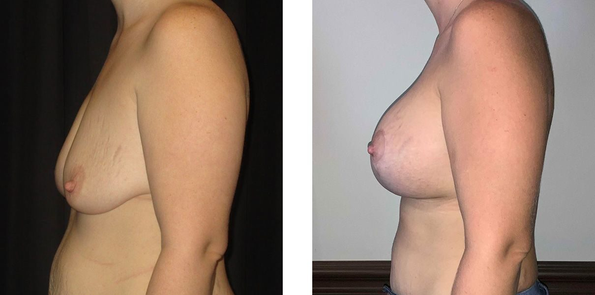 Cosmetic Surgery Tulsa | Breast Lift - Patient 3 - Side 2