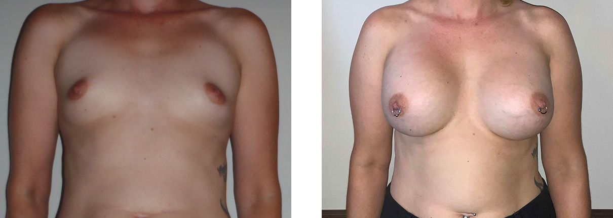 Cosmetic Surgery Tulsa | Breast Augmentation - Patient 1 - Front