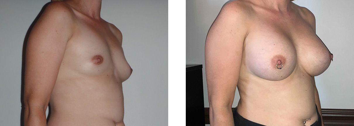 Cosmetic Surgery Tulsa | Breast Augmentation - Patient 1 - Oblique 1