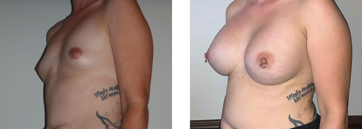 Cosmetic Surgery Tulsa | Breast Augmentation - Patient 1 - Oblique 2