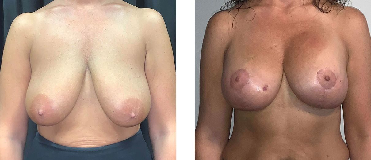 Cosmetic Surgery Tulsa | Breast Lift - Patient 4 - Front