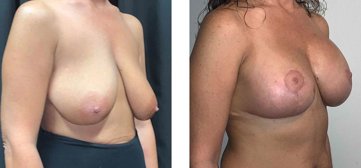 Cosmetic Surgery Tulsa | Breast Lift - Patient 4 - Oblique 1