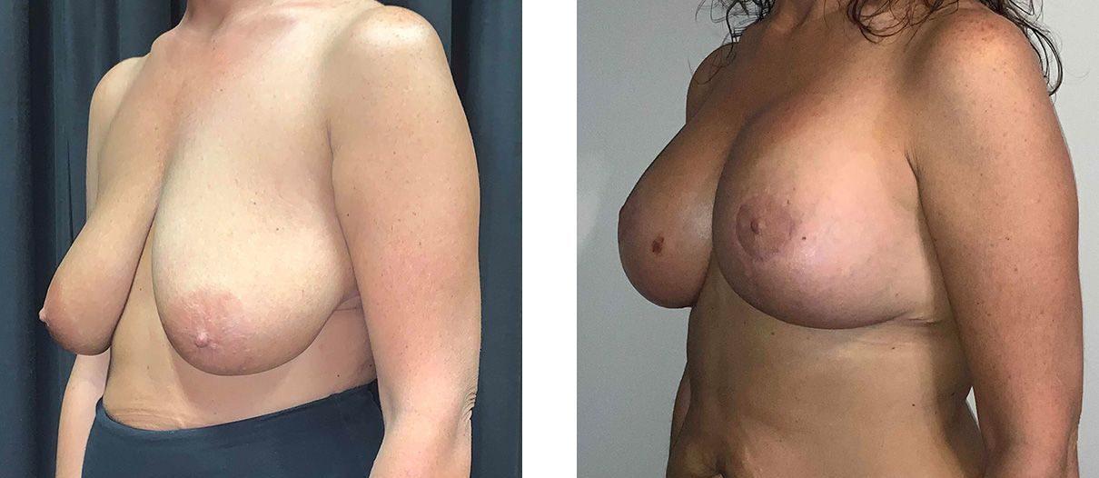 Cosmetic Surgery Tulsa | Breast Lift - Patient 4 - Oblique 2