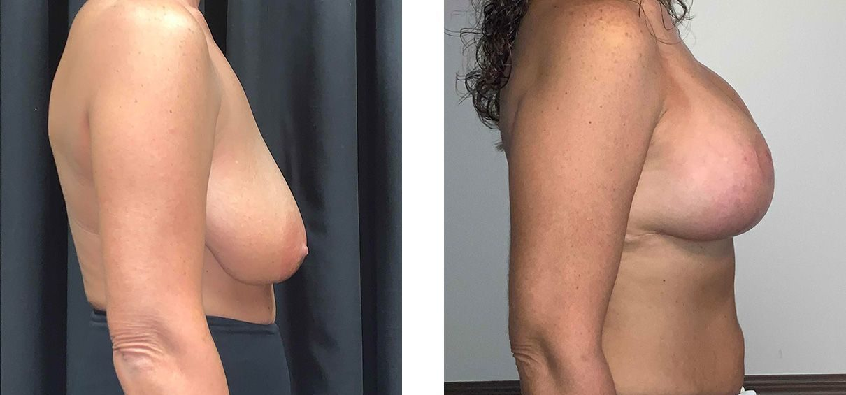 Cosmetic Surgery Tulsa | Breast Lift - Patient 4 - Side 1