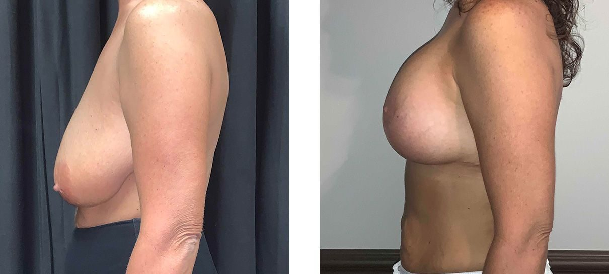 Cosmetic Surgery Tulsa | Breast Lift - Patient 4 - Side 2