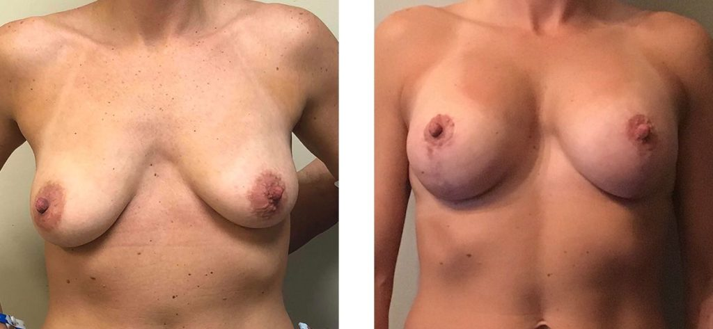 Cosmetic Surgery Tulsa | Breast Lift - Patient 5 - Front