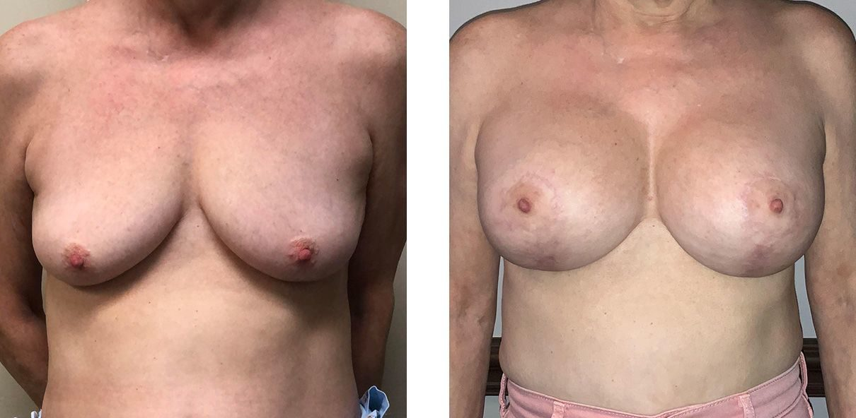 Cosmetic Surgery Tulsa | Breast Lift - Patient 6 - Front