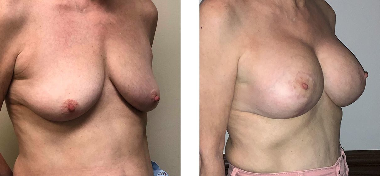Cosmetic Surgery Tulsa | Breast Lift - Patient 6 - Oblique 1
