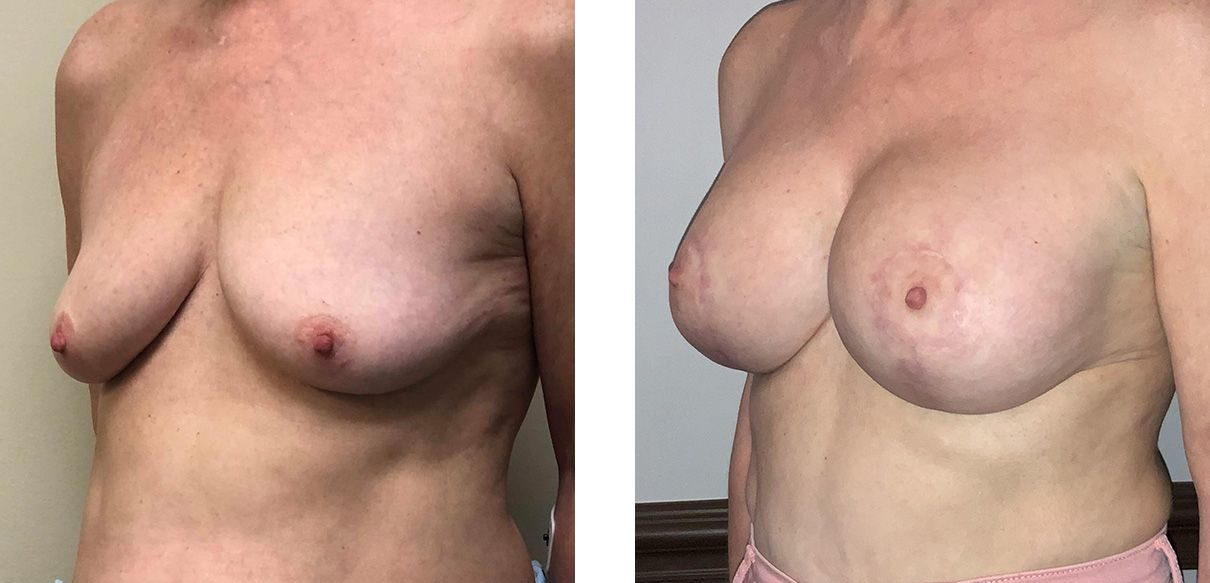 Cosmetic Surgery Tulsa | Breast Lift - Patient 6 - Oblique 2