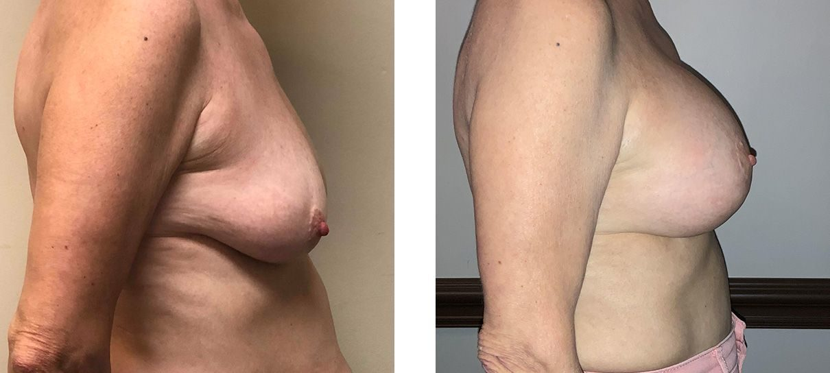 Cosmetic Surgery Tulsa | Breast Lift - Patient 6 - Side 1
