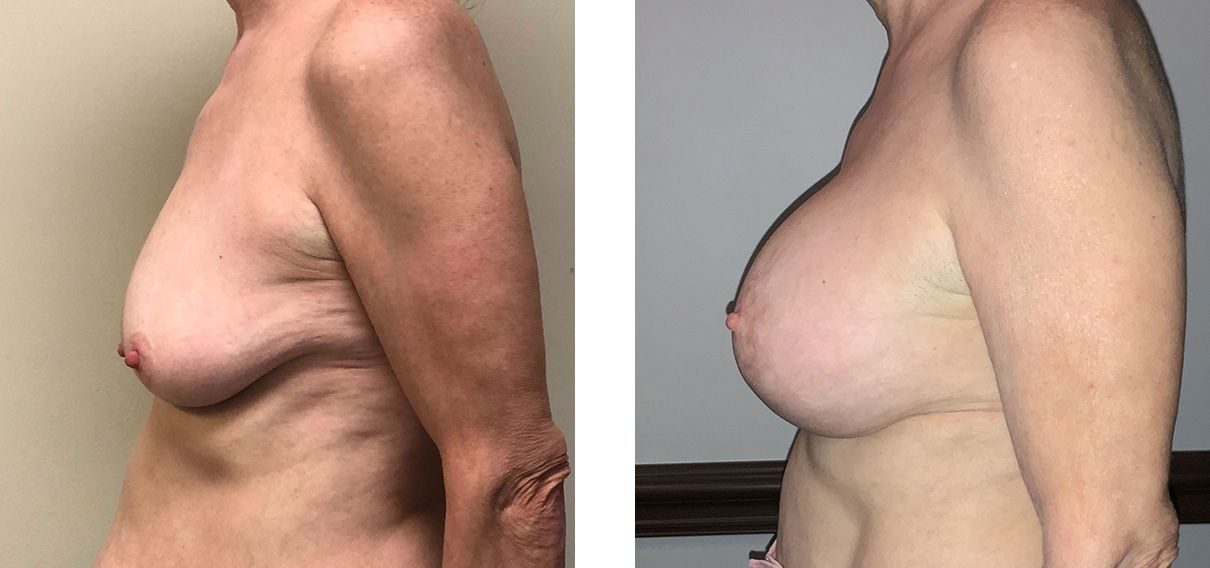 Cosmetic Surgery Tulsa | Breast Lift - Patient 6 - Side 2