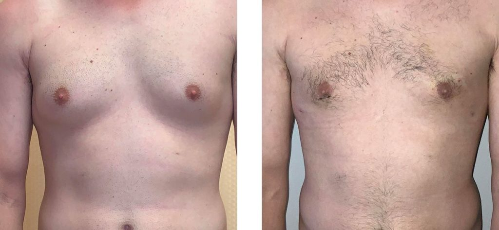 Cosmetic Surgery Tulsa | Gynecomastia - Patient 1 - Front