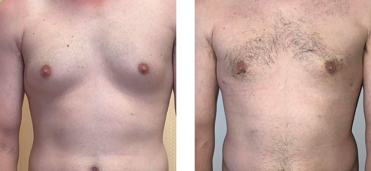 Cosmetic Surgery Tulsa | Gynecomastia - Patient 1 - Front